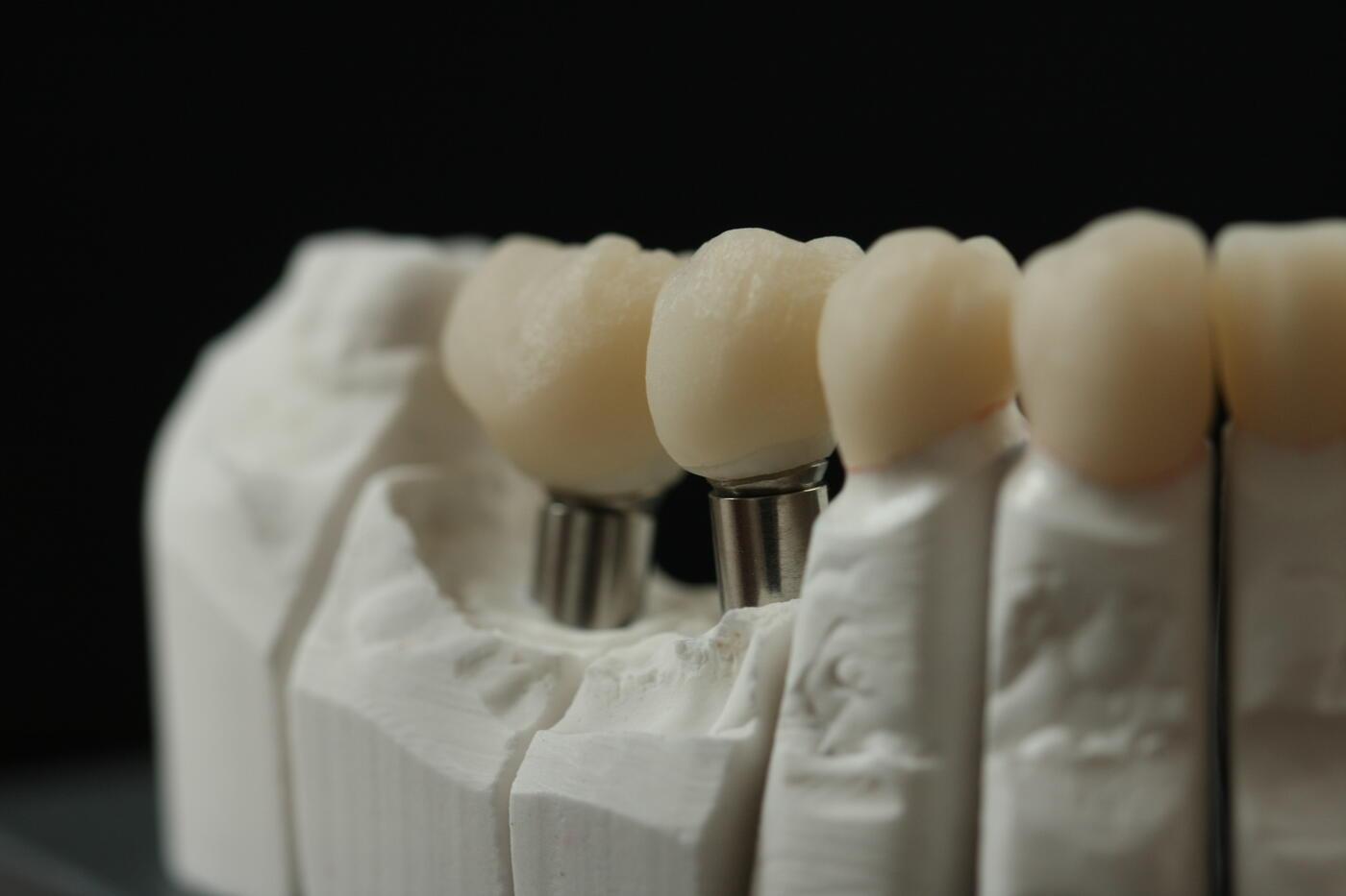 indiv. Vollkeramikaufbau auf Implantat